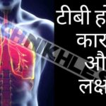 टीबी होने के कारण और लक्षण